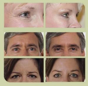 Injection de Botox par le Dr Lombardo Centre Murano à Lille