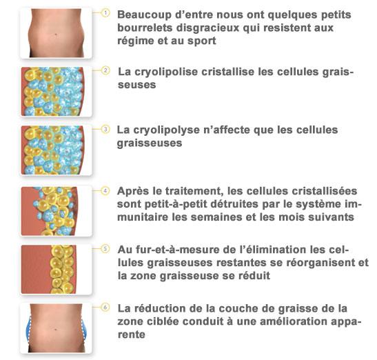 etapes-fonctionnement-cryolipolyse-colonne